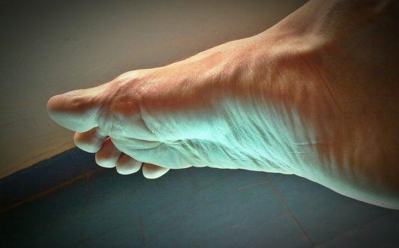 Jak się zabezpieczać przed grzybicą paznokci i stóp na lato?