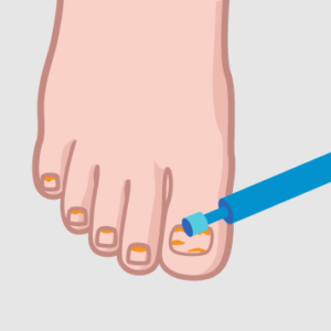 Oczyszczenie paznokci pourazowych / grzybiczych