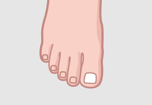 Rekonstrukcja płytki paznokciowej